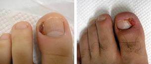 巻き爪(陥入爪)手術の適応