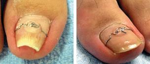 爪矯正治療(ドイツ・VHO式巻き爪矯正法)
