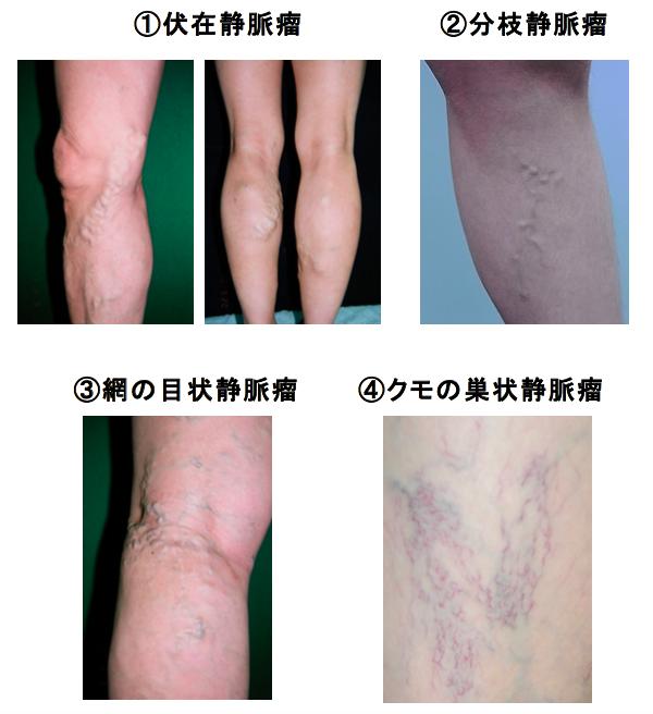 下肢静脈瘤の分類