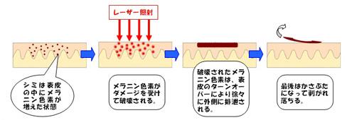 レーザー治療のメカニズム