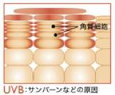 紫外線による炎症